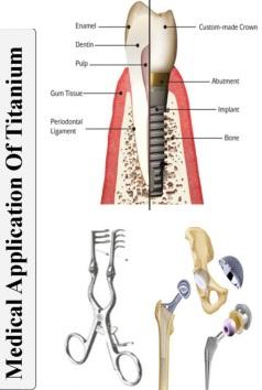 کاربرد تیتانیوم در صنعت پزشکی و دندانپزشکی